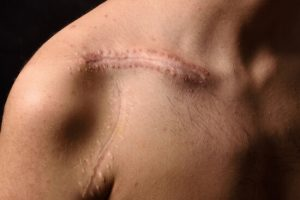 scarmarks from sutures