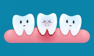 cartoon bleeding gums